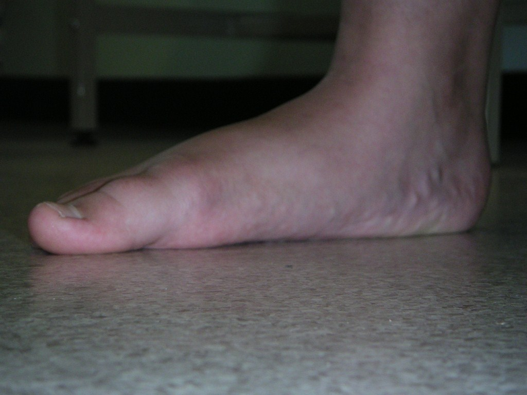 stiff flat foot due to inflammatory arthritis